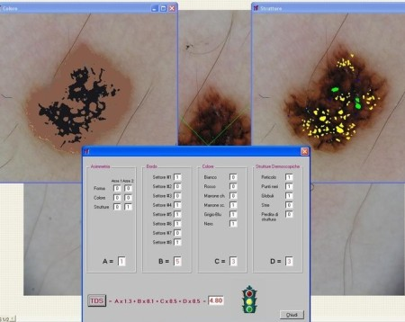 diagnosi computer, lesione pigmentata, nevuscreen