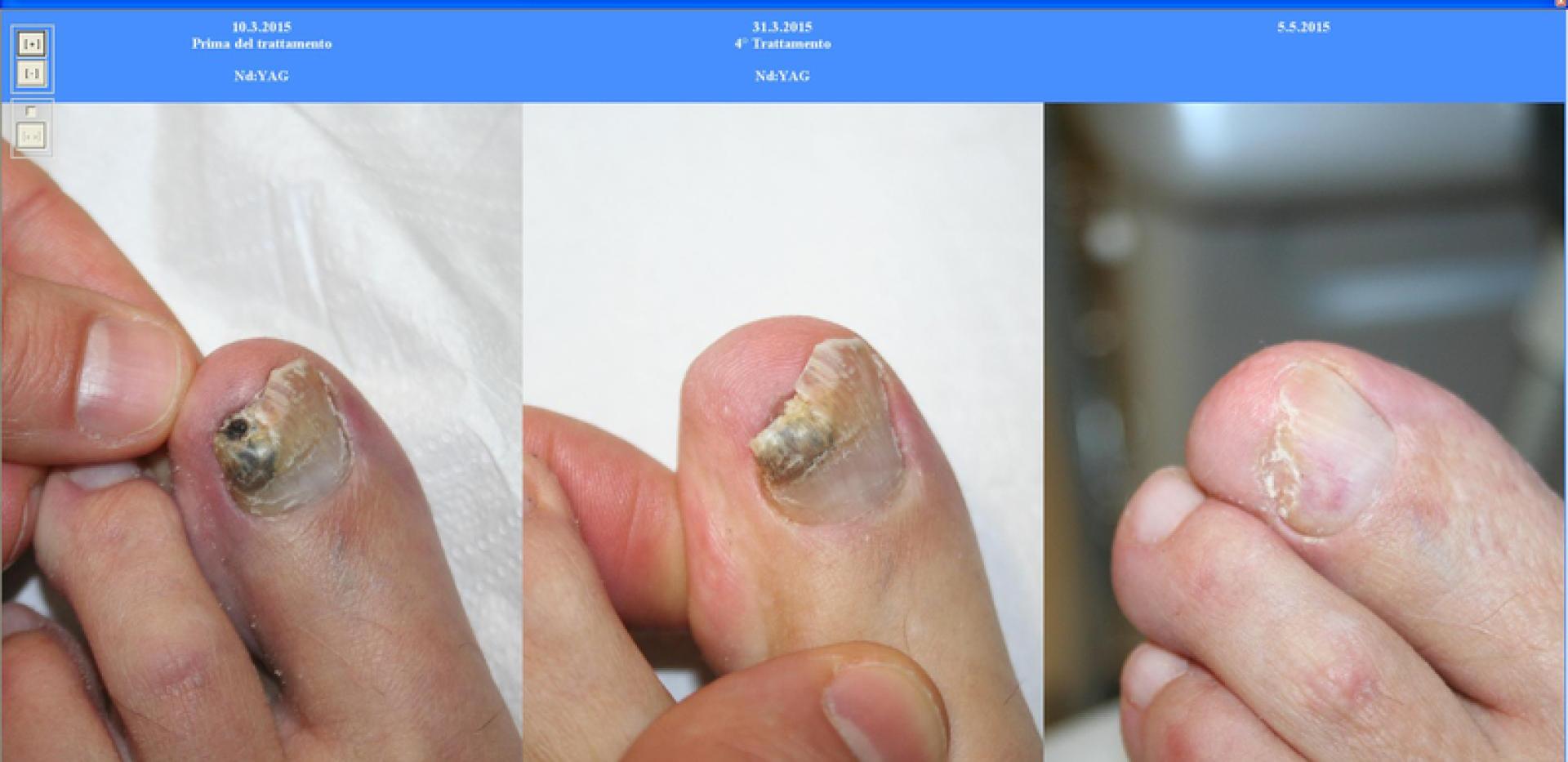 Fungo di medicine di unghie per trattamento batrafen