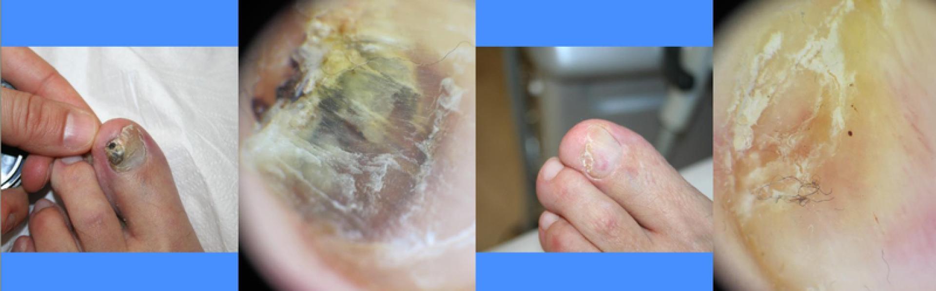 Come guarire un fungo tra risposte di dita del piede