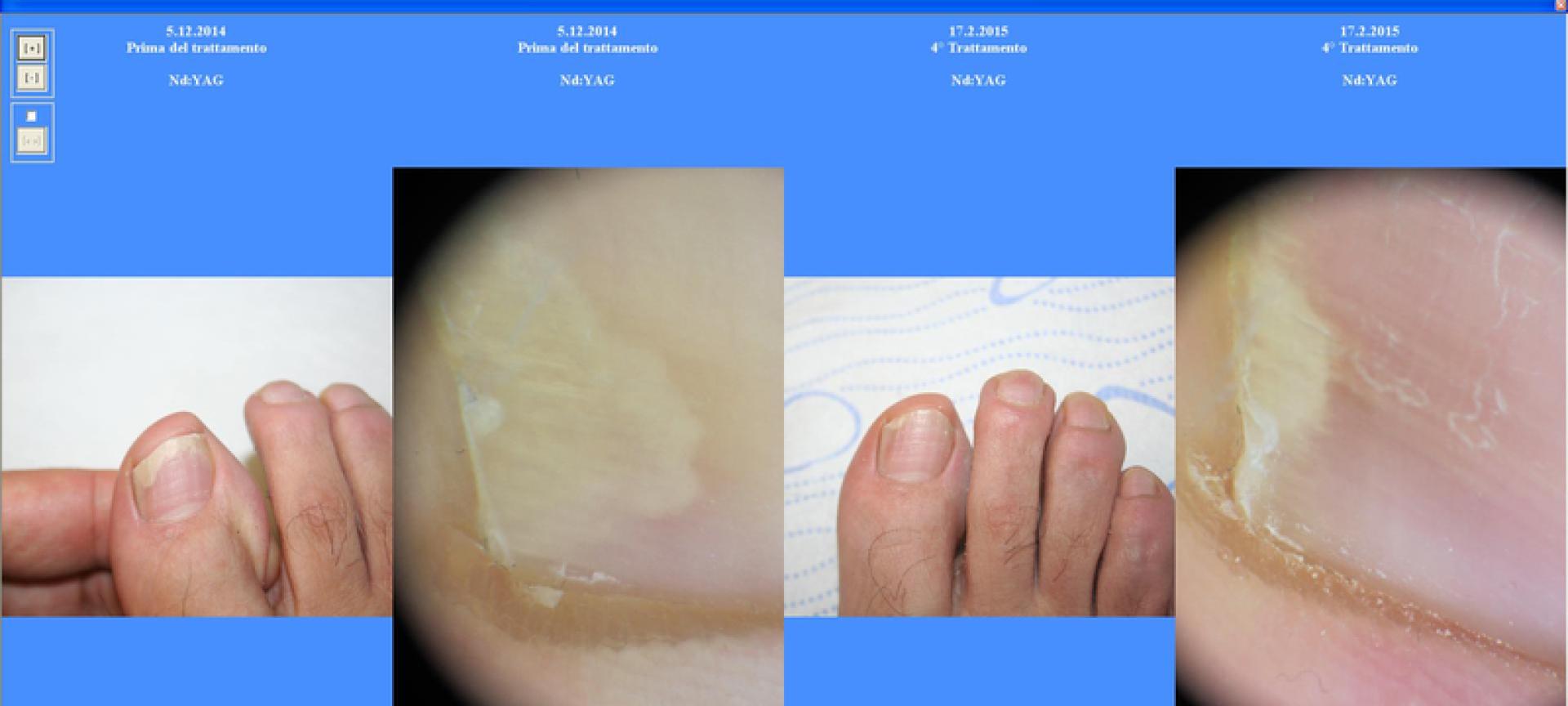 Mezzi da un fungo di piede fungoterbin