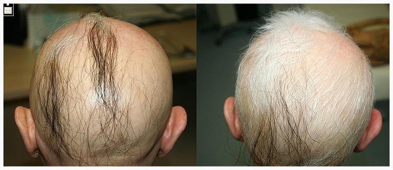 I capelli cadono dopo la prima rimozione dei capelli del laser